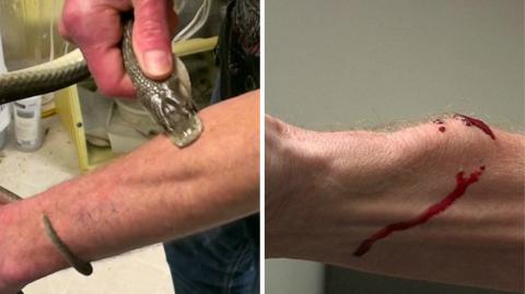 """""""Snake Man"""": Mann ist immun gegen das Gift der gefährlichsten Schlangen der Welt"""