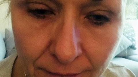 Sie schminkt sich 25 Jahre lang nicht ab. Dann geht sie zum Arzt und bekommt die Diagnose!