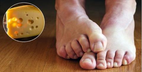 Das ist die Ursache, warum Füße manchmal nach Käse riechen