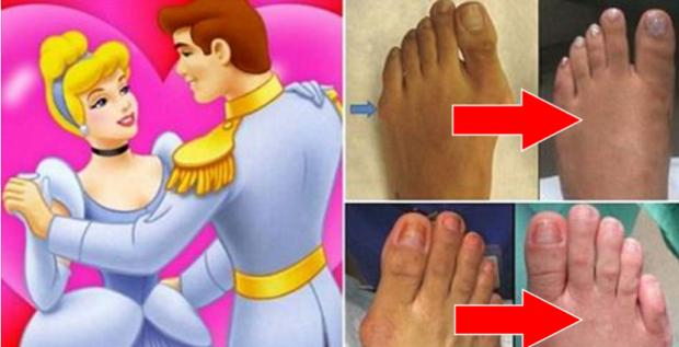 Bei der Cinderella-Op werden die Zehen verkürzt spitze Pumps