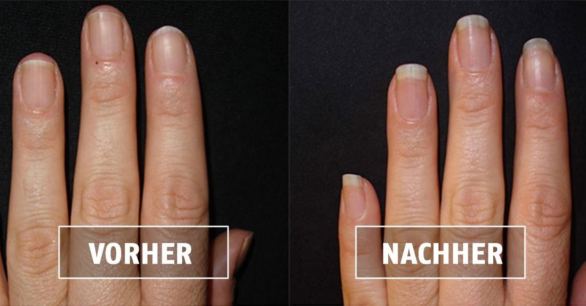 Maniküre: Dieses Selbstgemachte Nagelbad Lässt Deine Nägel