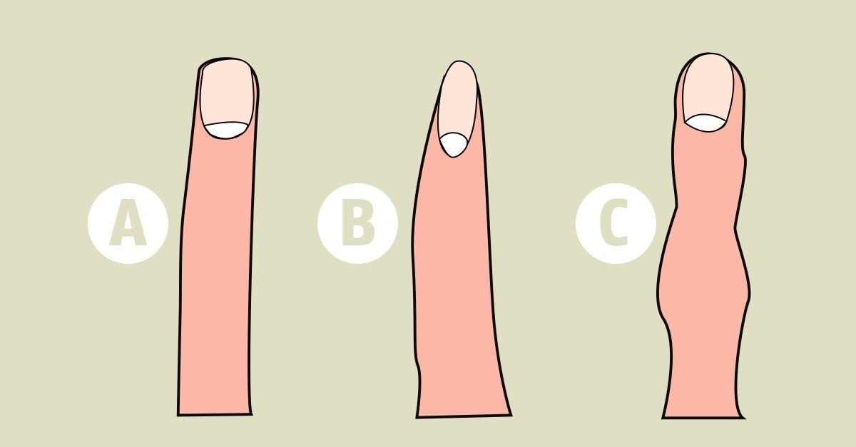 kleiner finger krumm