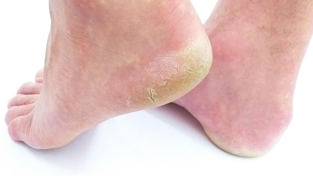 Was Hilft Gegen Hornhaut An Den Füßen