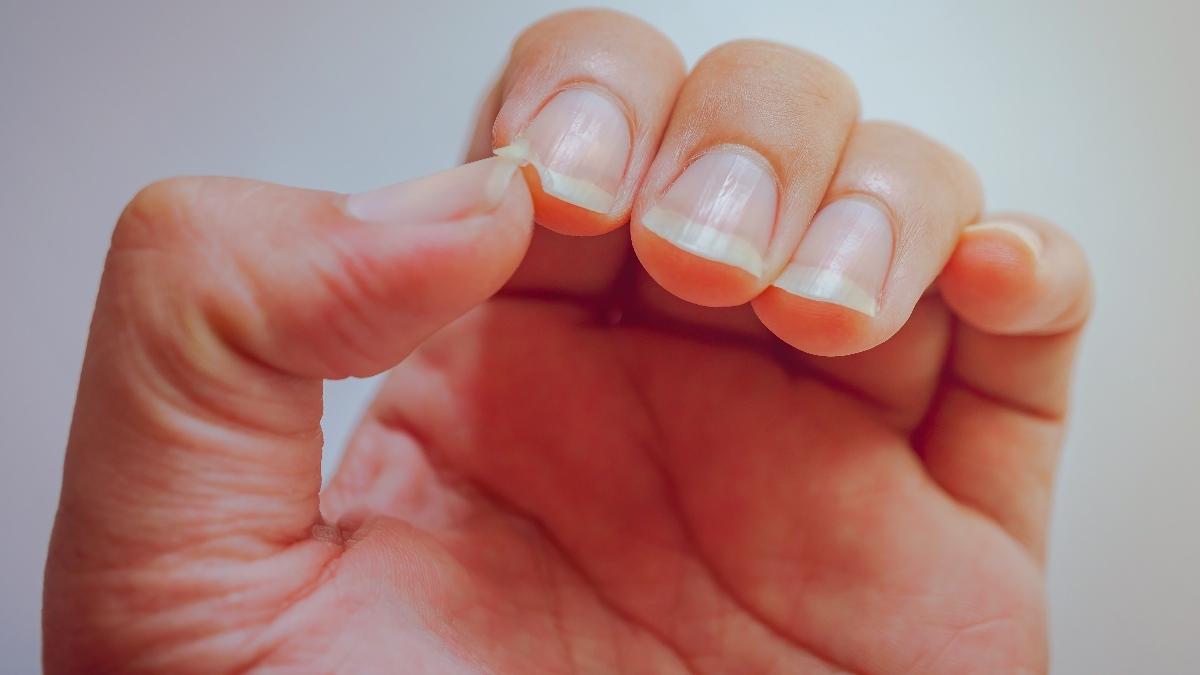 Anzeichen für Krebs: Das verraten deine Fingernägel über