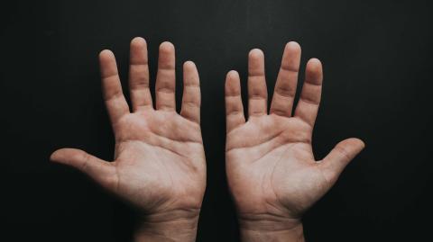 Nur etwa 3 % aller Menschen haben ein Zeichen mit einer ganz besonderen Bedeutung auf der Hand