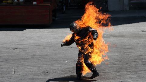 """""""Fire Challenge"""": Darum gefährden Jugendliche ihre Gesundheit"""