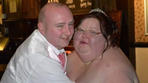 Frau sieht ihre Hochzeitsfotos und halbiert ihr Gewicht in nur 9 Monaten