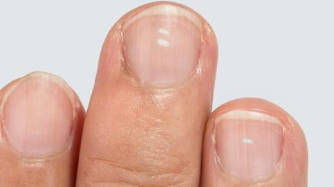 Streifen auf dem Nagel: Frau sieht darin sofort Anzeichen für eine schlimme Krankheit