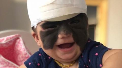 """""""Batman-Baby"""" namens Luna: Erste Behandlung verlief erfolgreich"""