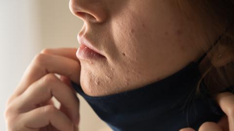 FFP2-Masken: Diese Folgen haben sie für die Gesundheit unserer Haut