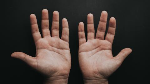 """Von wegen """"Corona-Zehen"""": Auch die Corona-Impfung kann die Farbe unserer Zehen und Finger verändern"""