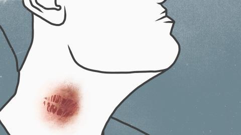 Knutschflecken: Expert:in warnt vor tödlichem Schlaganfall