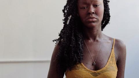 Fischschuppen-Haut: Dieses Model macht aus ihrer Krankheit ihre Stärke