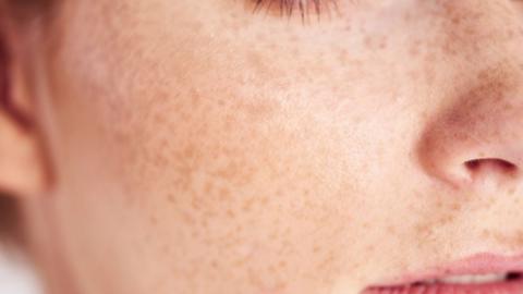 Diese 5 Lebensmittel lassen deine Haut gesund strahlen!