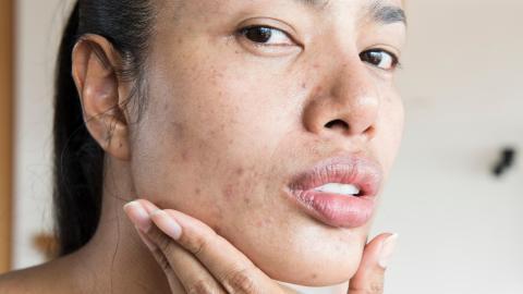 Skin Positivity: Was versteht man unter dieser Bewegung?