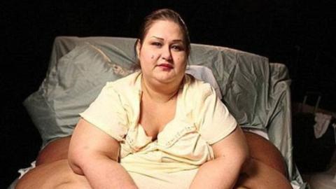 Dickste Frau der Welt nimmt 400 Kilo ab und ist kaum wiederzuerkennen