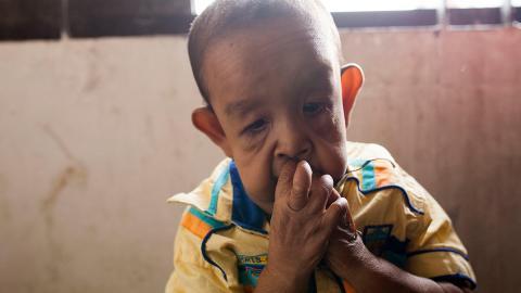 """""""Benjamin Button aus Bangladesh"""": Dieser kleine Junge sieht aus wie ein 80-Jähriger"""