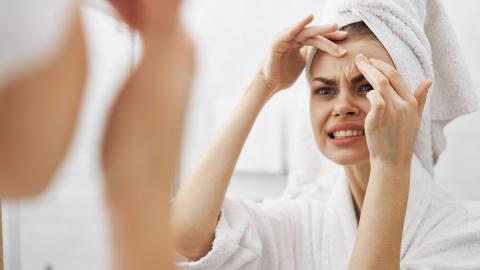 """""""Ganzes Gesicht entstellt"""": Frau will Mitesser entfernen, doch das bereut sie schnell"""
