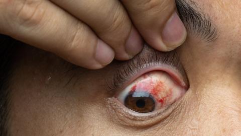 Gesundheit am Auge erkennen: So deutest du die Symptome richtig